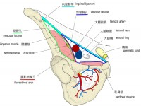 vascular-lacuna-5